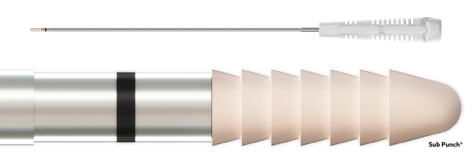 1940 - SUB PUNCH 3.0