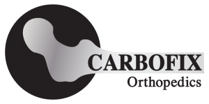 Carbofix Orthopedics